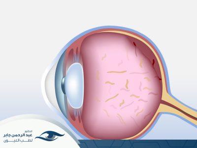 علاج انفصال السائل الزجاجي في العين