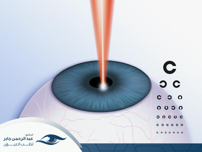 عملية الليزك للعيون