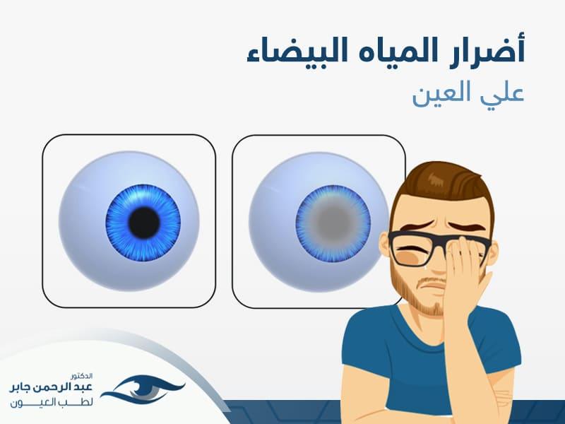 اضرار المياه البيضاء في العين، أعرف اكثر مع د/عبد الرحمن