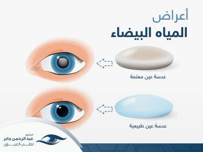 اعراض-المياة-البيضاء اعرفها مع د عبد الرحمن جابر