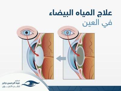 علاج المياه البيضاء في العين