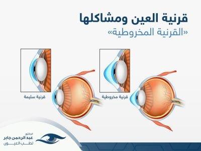 قرنية العين ومشاكلها - عبد الرحمن جابر