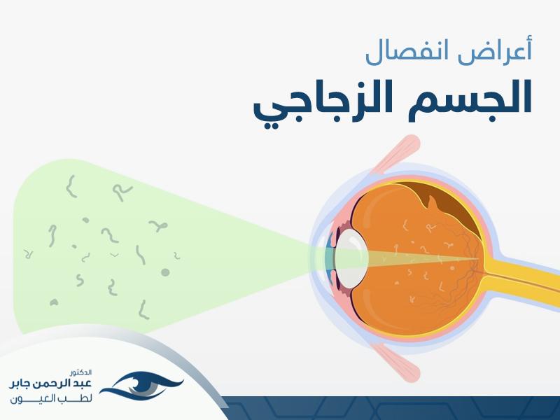 اعراض انفصال الجسم الزجاجي