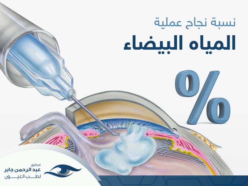 نسبة نجاح عملية المياه البيضاء